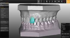 Software-module CAD/CAM Wax-up/Situ/Mirror Imaging