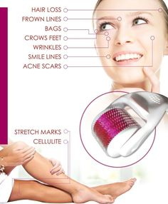 Derma Roller Best Facial Clearing Device for Acne Scars, Wrinkles, Blemish and Blackhead Remover, Dark Circle Eye Treatment Roller, Stretch Marks and Cellulite Reducing Tool Make Up Tutorials, Derma Roller, Crows Feet, Eye Treatment, Acne Treatments, Skin Elasticity, Acne Remedies, Foot Remedies, Blackhead Remover