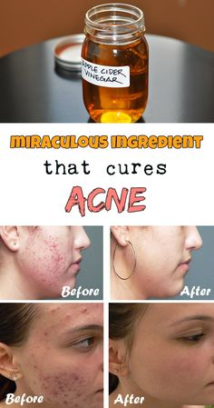 Miraculous ingredient that cures acne - RealBeautyTips.net