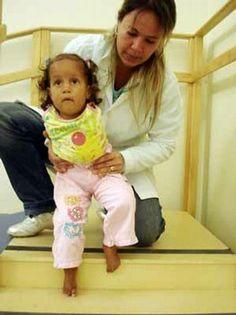 Centro de Reabilitação do Hospital João Penido completa dois anos