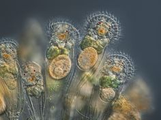 Under the microscope with the big winners of Nikon's annual Small World Photomicography contest