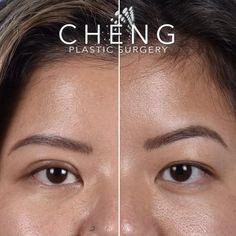 Our beautiful patient is 1 month post op from Asian Double Eyelid Surgery. Swelling will continue to decrease over the next few months! #eyelids #eyelidsurgery #cosmetics #aesthetic #before #after Double Eyelid, Eyelid Surgery, Dramatic Eyes, Hooded Eyes, 1 Month, Plastic Surgery, Asian Beauty, Cosmetics, Face