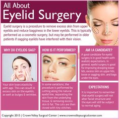 All About Eyelid Sur