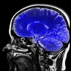 Las personas que padecen tinnitus y experimentan menos angustia por sus síntomas utilizan áreas distintas del cerebro para procesar la información emocional. Mientras que algunos pacientes se adapt…