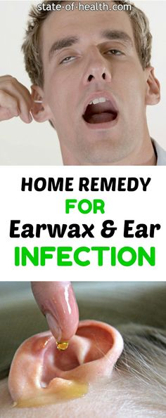 Home Remedy For Earwax & Ear Infectin