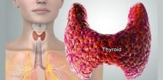 Hypothyroidism is a thyroid disease caused by failure of thyroid gland to produce adequate amount of thyroid hormone. This thyroid hormone is responsible for regulating metabolism,nervous system, heart, temperature, body weight and many other . Thyroid Symptoms, Thyroid Diet, Thyroid Issues, Thyroid Hormone, Thyroid Disease, Thyroid Problems, Thyroid Health, Health Problems, Thyroid Cancer