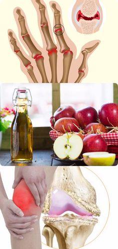 Лечим суставы без таблеток с помощью яблочного уксуса #здоровье Arthritis, Healthy Lifestyle, Health Fitness, Vegetables, Food, House, Medicine, Remedies, Health
