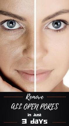 3 Days And All Open Pores Will Disappear From Your Skin Forever -