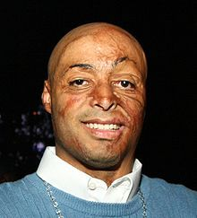 What an awesome, inspiring man!  JR Martinez, burned by a bomb while a soldier in Iraq.  Hero!  My eyes do not see his burns; I see beautiful eyes, a gorgeous smile, and the sweetest personality! He is adorable!