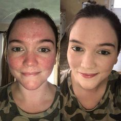 PHOERA Soft Matte Liquid Foundation – Trendlexz Makeup Tutorial Foundation, Dark Circles Under Eyes, Acne Breakout, Clogged Pores, Puffy Eyes, Sweat Proof, Look Younger, Liquid Foundation, Acne Scars