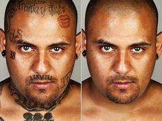 Skin retouching - Tattoo removal