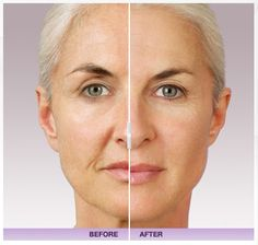 Dermal Fillers from Rejuvaderm MediSpa. At Rejuvaderm MediSpa, we offer quality anti-aging products including Juvederm and Restylane. Visit our site to learn more about our dermal fillers, or for directions to our Cranston, Rhode Island ( RI ) location. Facial Fillers, Botox Fillers, Dermal Fillers, Lip Fillers, Facial Treatment, Skin Treatments, Relleno Facial, Skin Care, Beauty