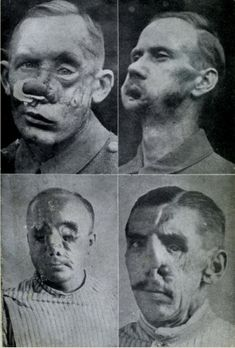 world-war-i-disfigured-veterans  - No plastic surgery, no antibiotics - brutal future