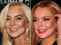 Celeb Teeth – Before and After  http://www.xclusivetouch.co.uk/page/blog/celeb-teeth-before-and-after  Lindsay Lohan, Lindsay, Lohan, Meangirls, Herbie, rehab, alcohol, tobacco, yellow, white, teeth, braces, veneers