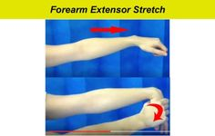 Learn the Top 10 tennis elbow exercises of all time that will help you recover fast at home by strengthening your affected tendons and muscles. Tennis Arm, Play Tennis, Tennis Rules, Tennis Tips, Forearm Workout At Home, At Home Workouts, Tennis Elbow Exercises, Tricep Stretch, Eccentric Exercise
