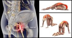 8 Exercises for Sciatica and Lower Back Pain Relieve If you suddenly start feeling unexplainable pain in your buttock, lower back or thigh, chances are that your sciatic nerve is not doing quite well. The sciatic nerve is the largest single nerve Sciatic Pain, Sciatic Nerve, Nerve Pain, Sciatica Exercises, Back Pain Exercises, Sciatica Yoga, Sciatica Symptoms, Hip Pain, Stretch Routine
