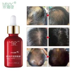 MIYAS Herbal Natural Hair Shedding Proof Liquid Growth Treatment Essence #myas
