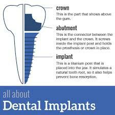 DISCOVER DENTISTS® All About Dental Implants http://DiscoverDentists.com