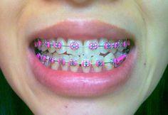 Cute Braces Colors, Cute Girls With Braces, Braces Girls, Braces Food, Dental Braces, Teeth Braces, Pink Braces, Gold Braces, Braces Retainer