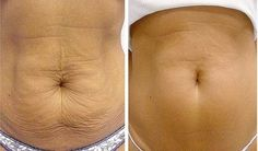 How to tighten loose or saggy skin in two weeks! This works!! This blog gives helpful tips and tricks to tightening your skin after pregnancy or weightloss.