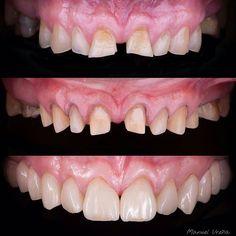 Dental-Spa By K & F. Agenda tu cita hoy (664)685.00.58 #dentalspabyKF