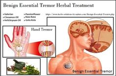 Betneton for Benign Essential Tremor Herbal Treatment