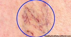 The Best Home Remedies to Get Rid of Spider Veins