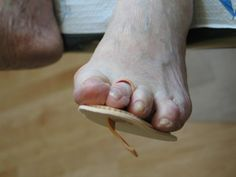 Don't be afraid to ask for treatment for your hammertoes! http://www.wwfoot.com/