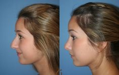 nose job before and after