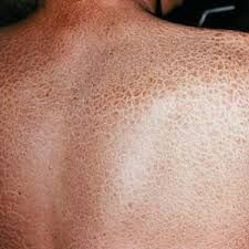 Ichthyosis Skin Disease Causes, Symptoms And Treatment