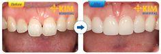 Lo ngại mài răng có đau không và cách giảm đau HIỆU QUẢ nhất 3
