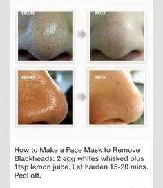 Clearer skin!