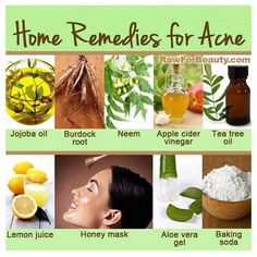 Home remedies for acne  Some of these mix well: jojoba + tea tree oil, Apple cider vinegar + baking soda or bentonite clay for a mask, Honey + lemon for scrub or mask wich lighten acne blemishes, Aloe vera gel heals the skin and fights acne