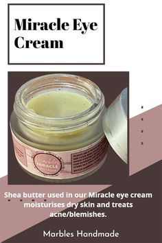 Shea butter used in our Miracle eye cream moisturises dry skin and treats acne/blemishes. Please visit our website for more information. Miracle Eye Cream, Acne Blemishes, Moisturizer For Dry Skin, How To Treat Acne, Rings Cool, Marbles, Dark Circles, Shea Butter, Skincare