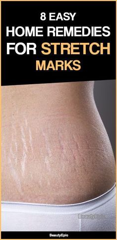 Home Remedies for Stretch Marks #BioOilStretchMarks Tips For Oily Skin, Cream For Oily Skin, Moisturizer For Oily Skin, Oily Skin Care, Anti Aging Skin Care, Natural Skin Care, Skin Tips, Keratin, Stretch Mark Remedies
