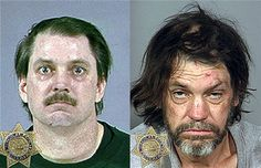 Before and after addict photos... This is what they should show to keep kids off drugs