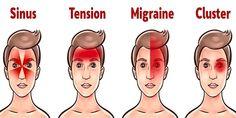 Hoofdpijnen zijn een van de meest voorkomende gezondheidsproblemen, en ze kunnen van verschillende typen zijn.Daarom moet je de oorzaak van de pijn vinden om het te behandelen. Soms is hoofdpijn het resultaat van uitdroging en vermoeidheid, maar ze kunnen ook een symptoom zijn van enkele ernstige gezondheidsproblemen. Volgens Dr. Sakib Qureshi MD, een beroemde neuroloog,…