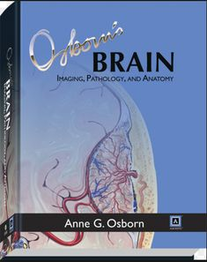 Osborn's Brain Imaging, Pathology, and Anatomy (2013) [PDF]
