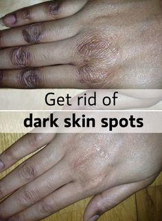 GET RID OF dark skin spots!!