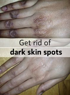When our skin gets irritated or gets a sunburn we can end up with dark spots (dark skin). Best way to get rid of it outside chemical peels? Of course...