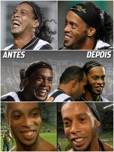 Ronaldinho's teeth - before and after