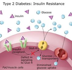 The picture of type 2 diabetes is different that what folks may think.