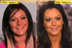 JWoww Plastic Surgery Before and After Always interesting what you can find when you type in plastic surgery and other related terms