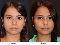 Bichectomia: saiba tudo sobre a cirurgia de redução das bochechas para afinar o rosto | Entre Coisas