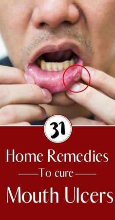 31 Home remedies to cure Mouth Ulcers