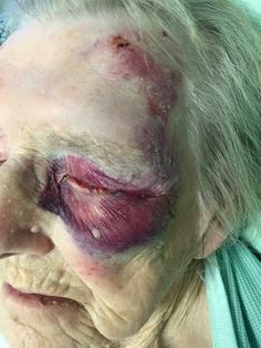 Old women black eye