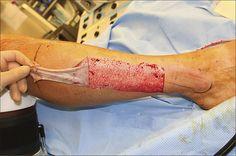 Removing skin to make a skin graft