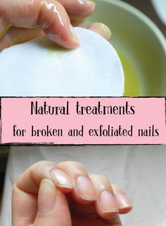 Natural treatments for broken and exfoliated nails