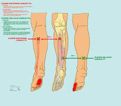 What Tennis Shoes For Women Help With Peroneus Brevix Tendon