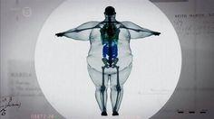X-ray of a 900 pound man.